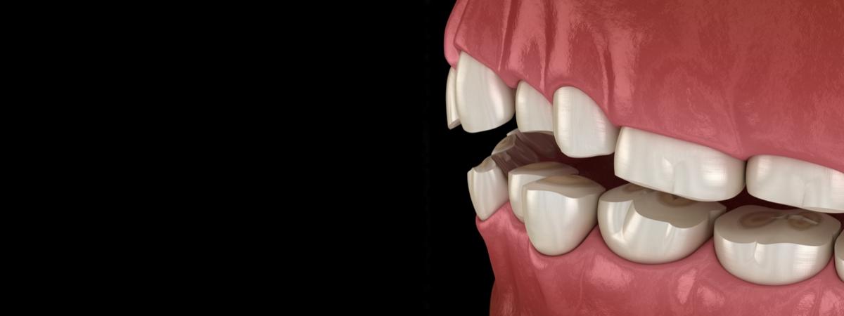 bruksizm patologiczne starcie zębów