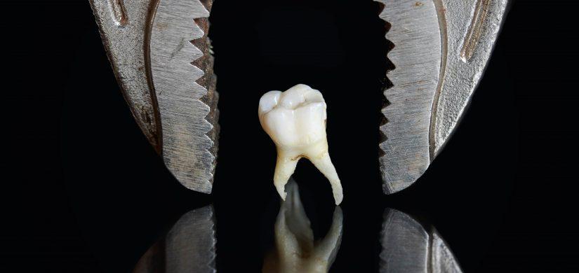 ekstakcja zęba kleszcze dentystyczne
