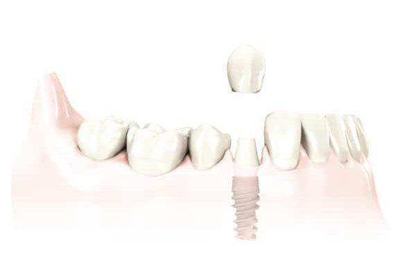 korona na implancie stomatologicznym
