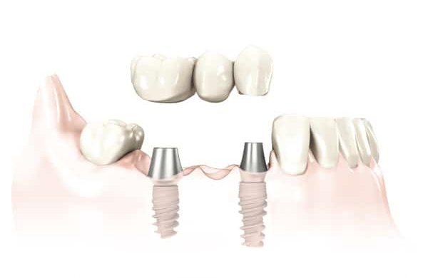 most trzypunktowy na dwóch implantach zębowych