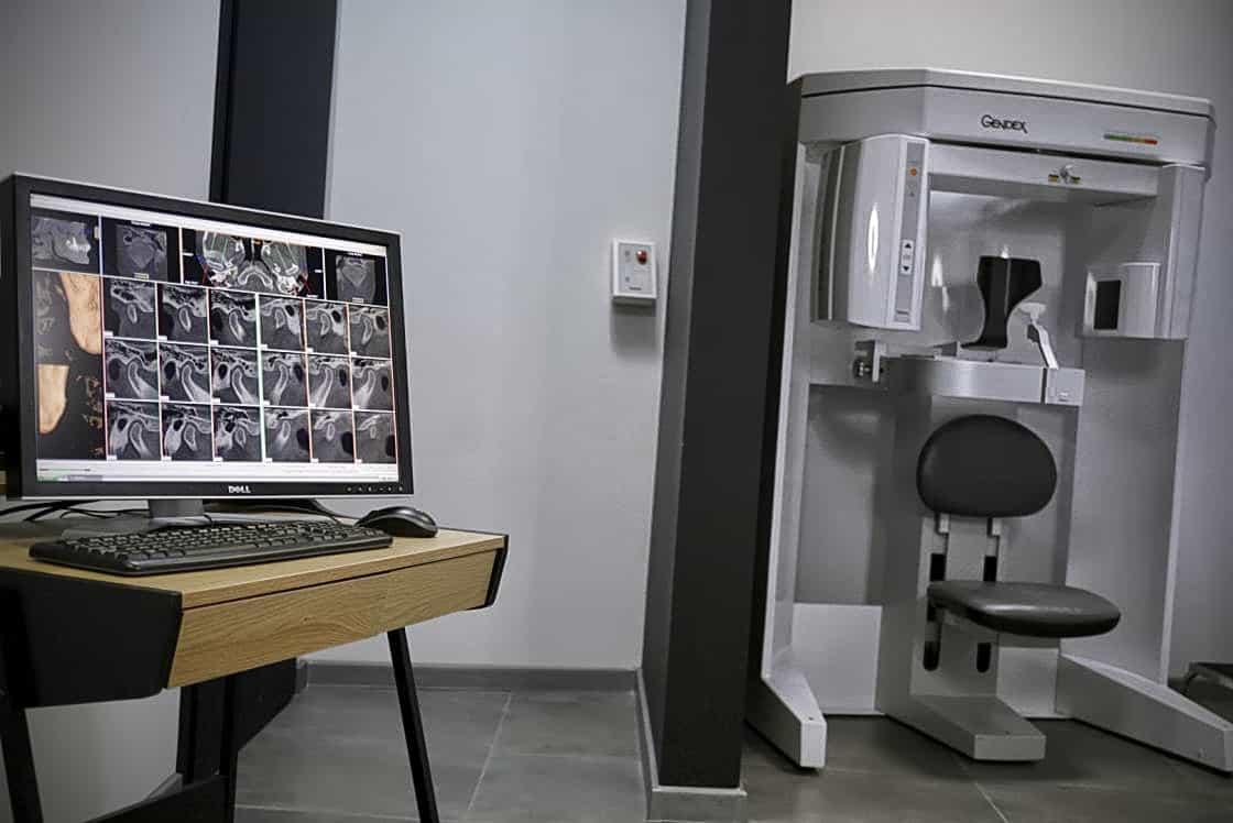 tomografia komputerowa szczęki i żuchwy CBCT