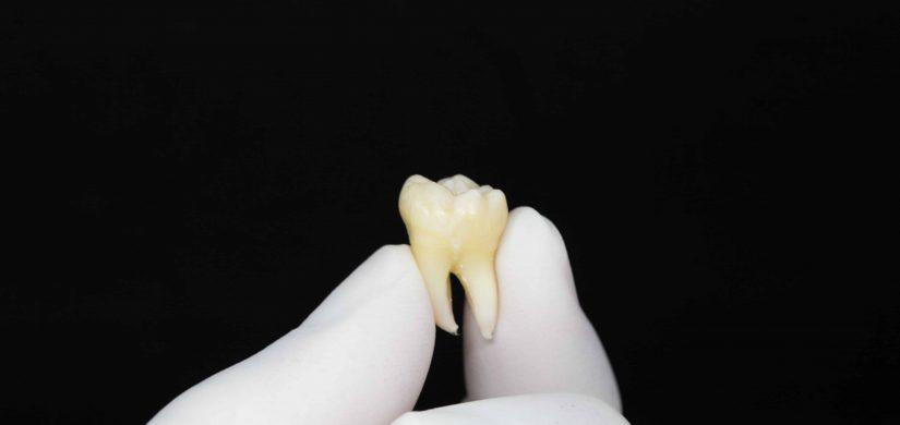 usunięty ząb bezbolesne zabiegi chirurgiczne