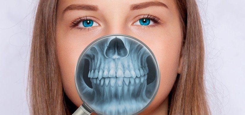 diagnostyka radiologiczna rentgen stomatologiczny