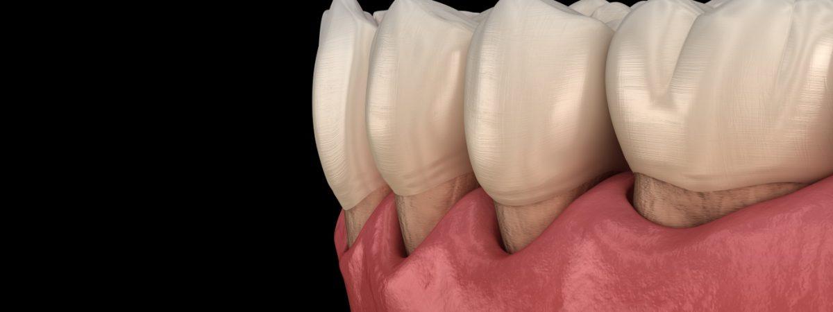 periodontologia Kraków